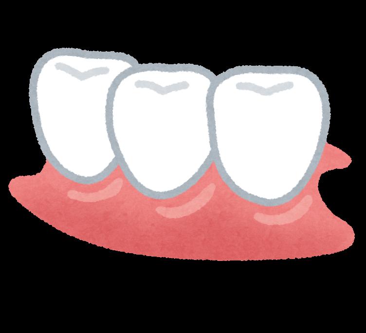部分入れ歯のイラスト