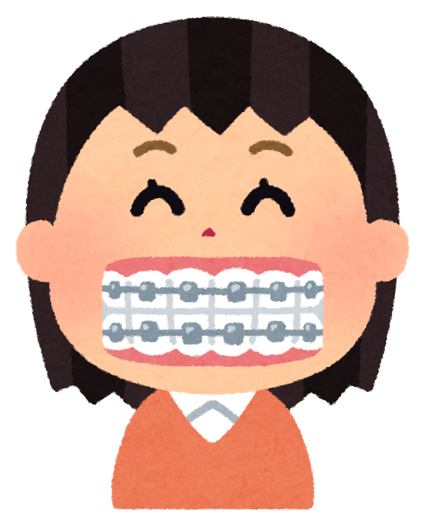歯の矯正のイラスト(女性)