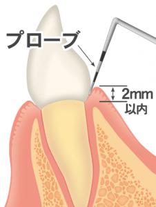 歯周ポケット検査 健康な歯肉