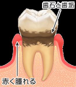 歯周病のイラスト1(文字あり)